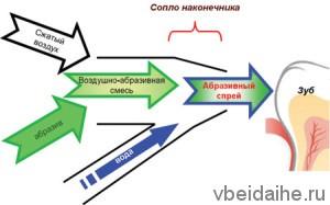 Воздушно-кинетический метод